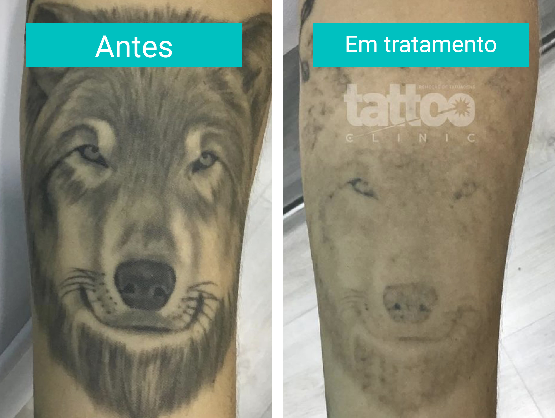 Remoção de Tatuagens - Durante o Tratamento